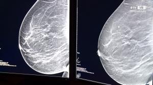 Brustvorsorge-Untersuchung - genauer denn je!